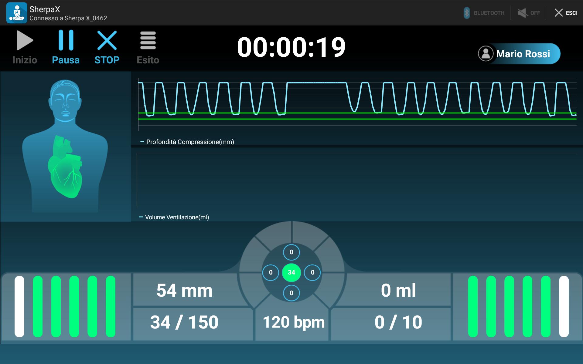 Autoaddestramento App SherpaX